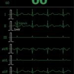 M850-ECG 7 courbes