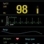 M850 Multifonction SpO2+ECG+RESP_